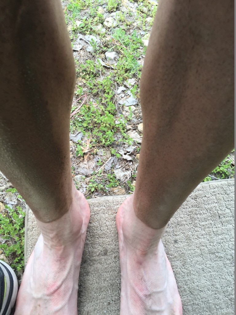 Kleidosty's legs following the race - dust and sunscreen combine to make a darker shade of legs!